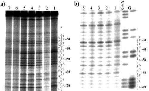 La sección de la derecha muestra la prevalencia del gen CXPAC5 en un ser humano normal. A la izquierda tenemos la muestra de ADN de Akenatón